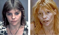 Meth user after 4 years of use
